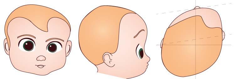 plagiocefalie - plagiocefalie posteriori - plagiocefalie sinostotiche